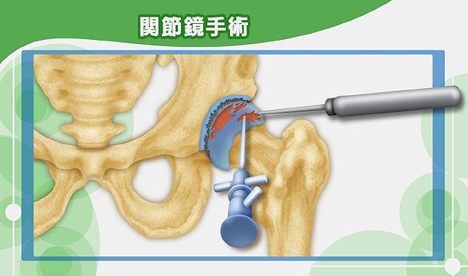 股関節の手術