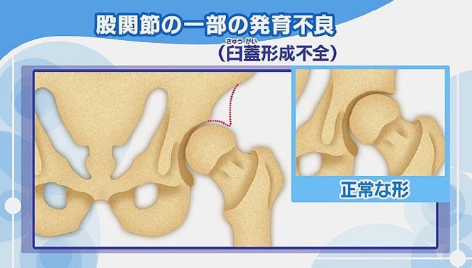 股関節の形状