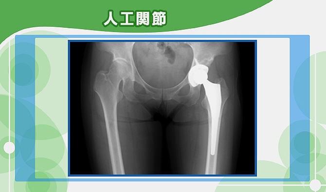 股関節の人工関節